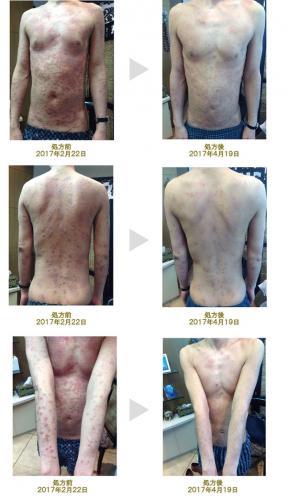 アトピー 性 皮膚 炎