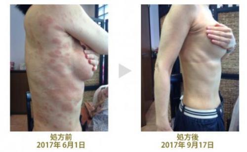 原因 アトピー アトピー性皮膚炎とはどんな病気? 原因、治療、付き合い方について